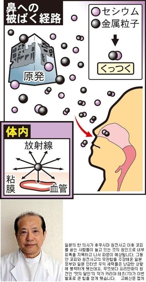 """""""후쿠시마 코피, 피폭 탓"""" 일본 의사 주장에 발칵...."""